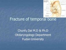Fracture of temporal bone 耳鼻咽喉科学课件