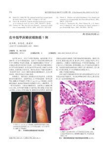 右中指甲床鳞状细胞癌1例