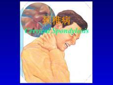 颈椎病颈肩疼痛教学文稿