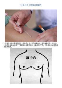 针灸三个穴位有效减肥