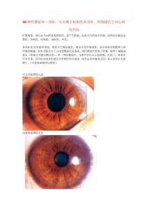 li08.神经紧张环-部位:可出现于虹彩的各部位,环绕瞳孔呈同心圆的凹沟oe