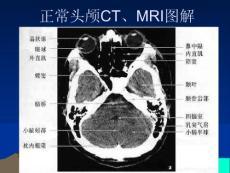 正常头颅CT_MRI图解