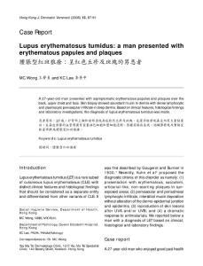 肿胀型红斑狼疮:呈红色丘疹及斑块的男患者