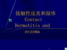 接触性皮炎和湿疹学习ppt课件