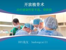 开放植骨术-治疗感染性骨不连、骨缺损